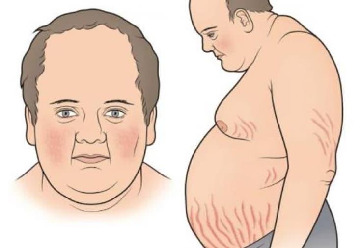 Синдром Иценко-Кушинга – что это такое, симптомы, диагностика и лечение