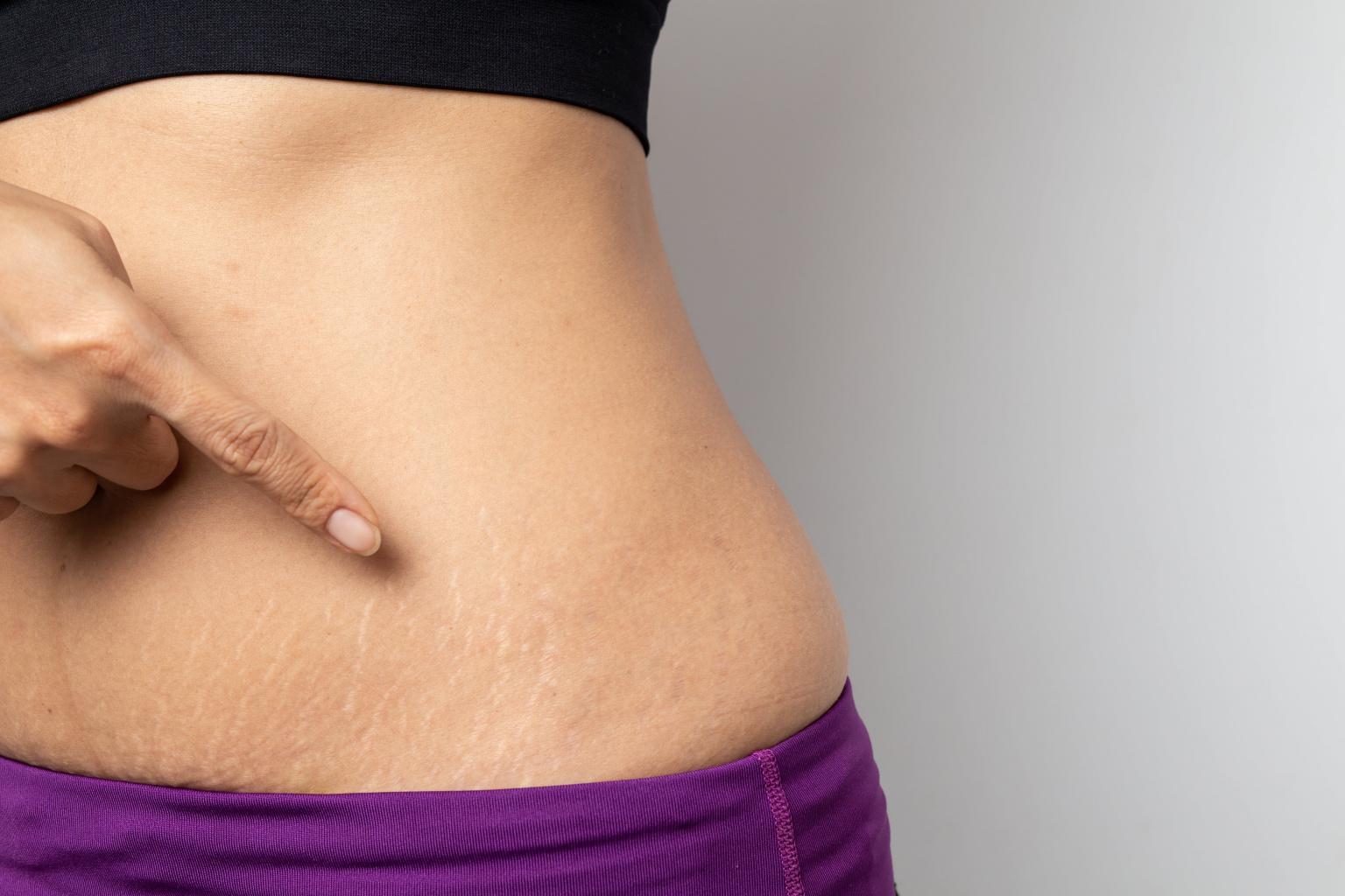 Растяжки после похудения – как от них избавиться за счет микродермабразии и обвертывания